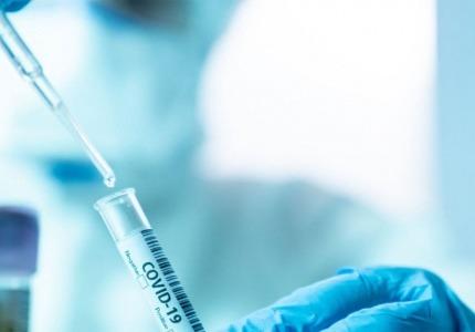 Становище на НАП относно нулева ДДС ставка за диагностични изделия за COVID-19